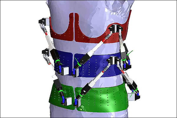 First dynamic spine brace characterizes spine deformities