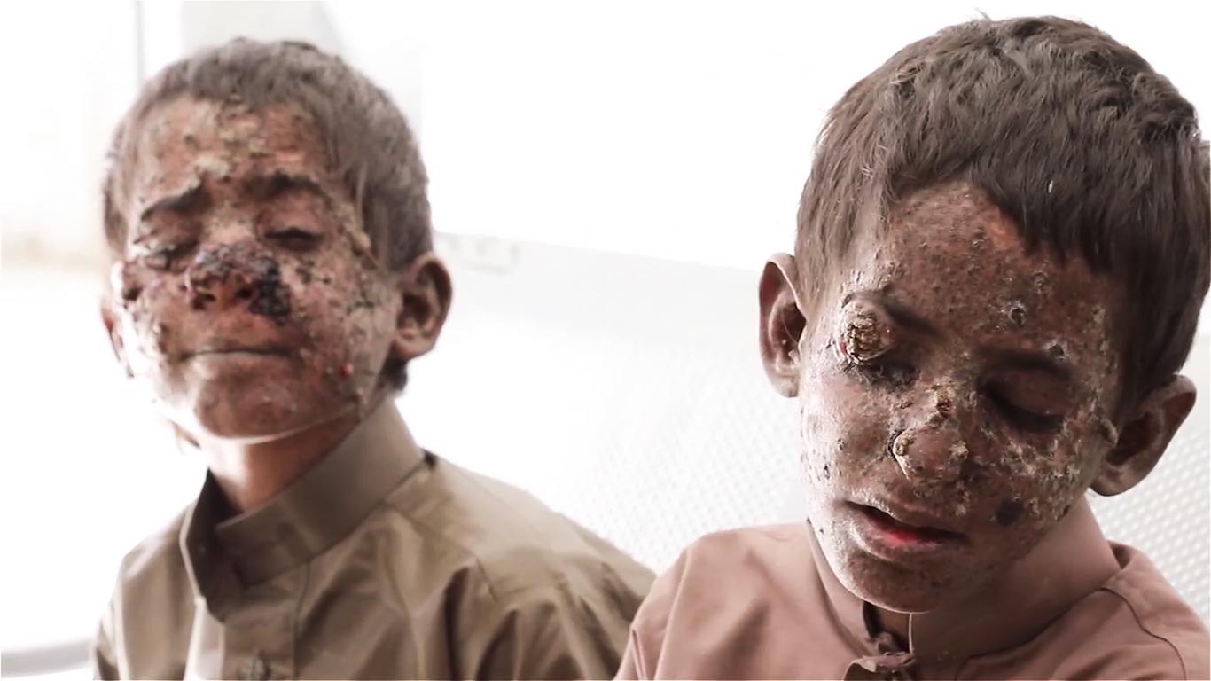 Yemen Children Biden
